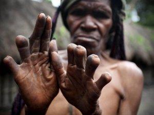 Sevilen biri öldüğünde, kadın ya da çocuğun parmağı kesiliyor