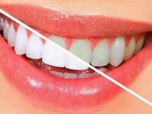 Diş beyazlatıcı doğal  yiyecekler