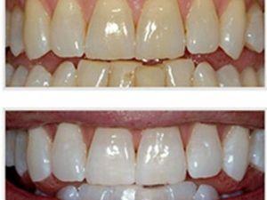 Dişleri beyazlatmanın 5 pratik yolu