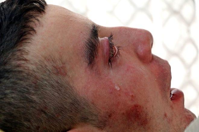 5 yıldır göz kapaklarını kapatamıyor! Kan ağlıyor galerisi resim 1