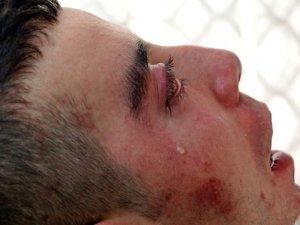 5 yıldır göz kapaklarını kapatamıyor! Kan ağlıyor