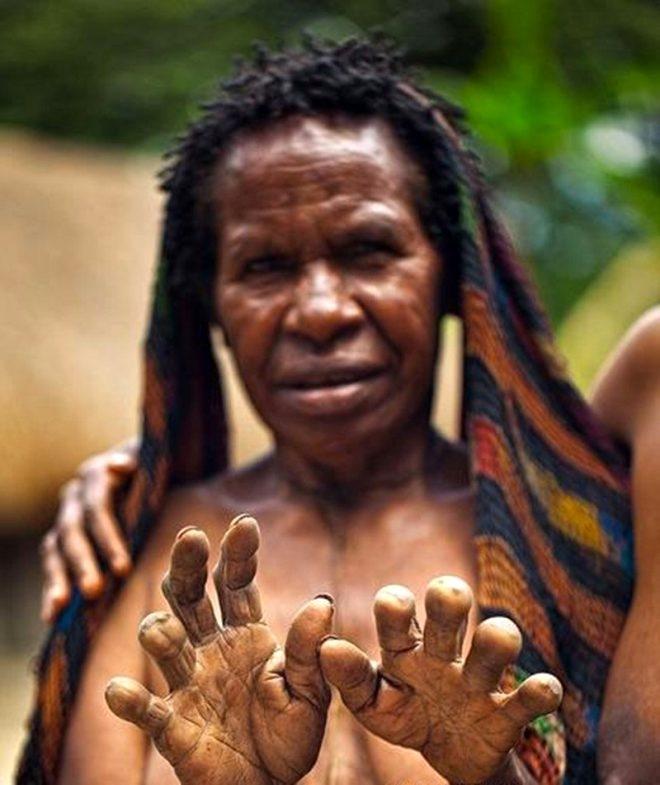 Sevdiği biri ölünce parmaklarını kesiyorlar galerisi resim 1