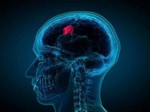 Beyin tümörünün belirtileri nelerdir?