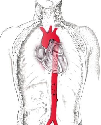 Oya Aydoğan'ın ölümü bu soruyu gündeme getirdi: Aort damarı nasıl y galerisi resim 2