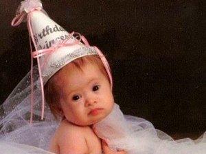 Kürtajla alınmak istenen down sendromlu kız model oldu