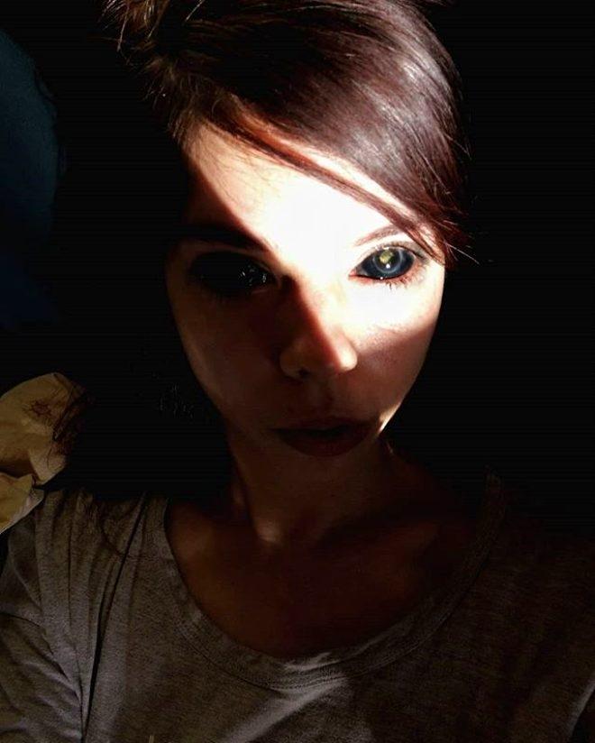 Şarkıcıya özenip gözlerine dövme yaptıran genç kız kör oldu! galerisi resim 1