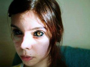 Şarkıcıya özenip gözlerine dövme yaptıran genç kız kör oldu!
