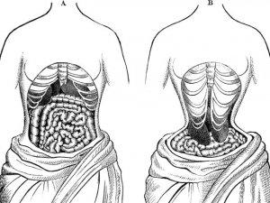 Güzellik için organlarının yerlerini değiştirdiler!