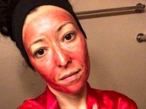 36 yaşındaki kadın, güzelleşmek için regl kanını yüzüne sürüyor