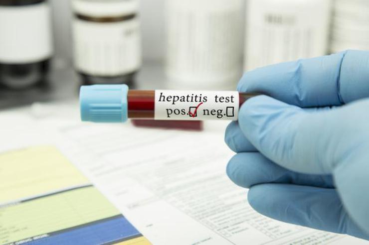 8 adımda hepatitten korunun galerisi resim 1