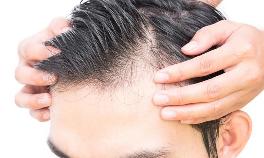 Saç dökülmesinin neden olur? İşte saç dökülmesinin 9 nedeni! galerisi resim 10