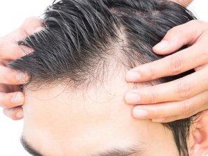 Saç dökülmesinin neden olur? İşte saç dökülmesinin 9 nedeni!