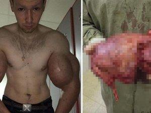 Biceps'e enjekte etti...Kolundan çıkan şoke etti!