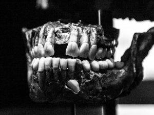 Dişler Yalnızca Ağızda Oluşmuyor!