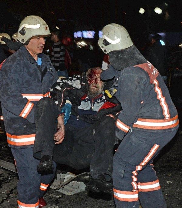 Ankara Patlama olay yeri fotoları (+18) galerisi resim 10