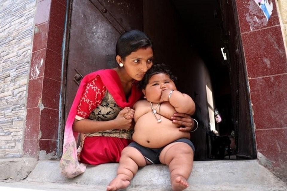 Görenler şaşırıyor, 8 aylık Chahat Kumar bebek 17 kilo! galerisi resim 1