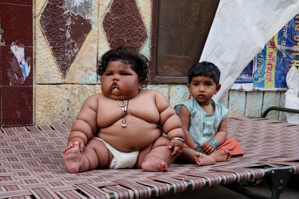 Görenler şaşırıyor, 8 aylık Chahat Kumar bebek 17 kilo! galerisi resim 2