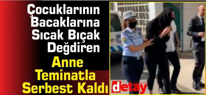 Çocuklarının Bacaklarına Sıcak Bıçak Değdiren Anne Teminatla Serbest Kaldı