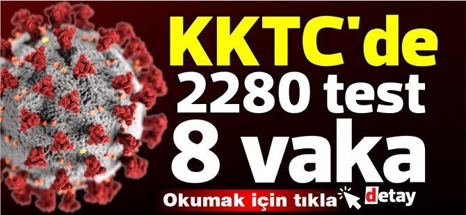 KKTC'de bugün 2280 test 8 yeni vaka