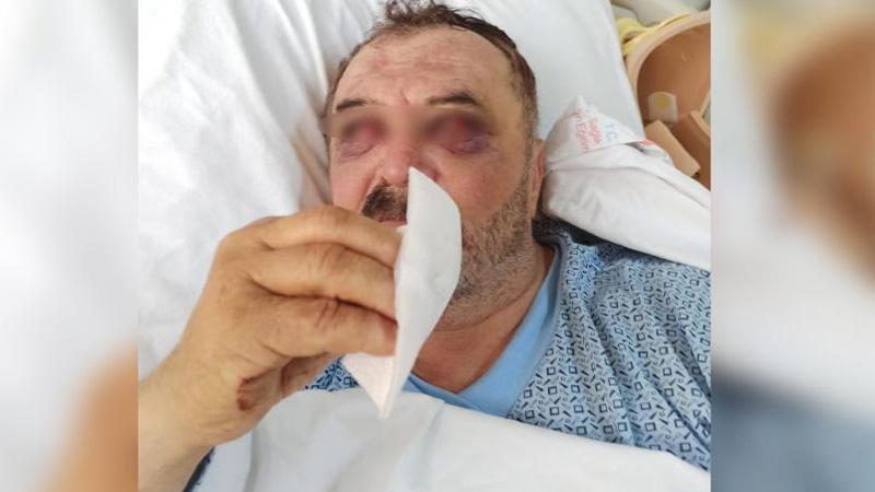 Gözaltına alındıktan sonra helikopterden atıldıkları iddia edilmişti; hastane raporu doğruladı