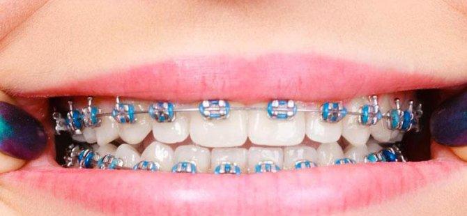 Diş Teli Olanlar Nelere Dikkat Etmeli ?