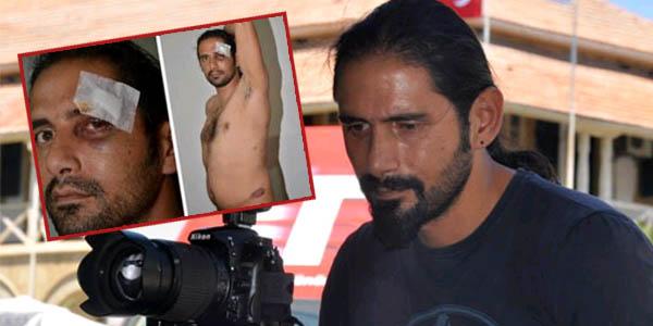 Polis, Gazeteci Abbas Elmas'ı Ciddi Şekilde Darp Etti