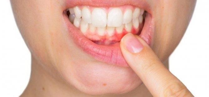 Diş Eti Enfeksiyonları Bağışıklığı Olumsuz Etkiliyor !