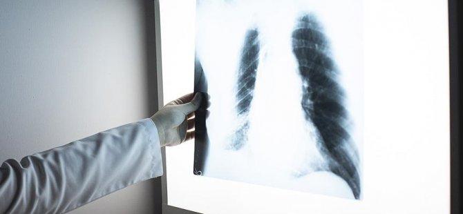 Kanserle mücadele için 'sigara ve alkolden uzak durulması' tavsiyesi