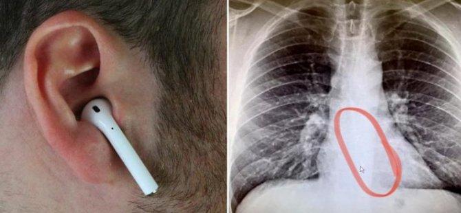 Boğaz kuruluğu şikayetiyle doktora gitti, kulaklığını yuttuğu ortaya çıktı: 'Neyse ki pili bitmiş'