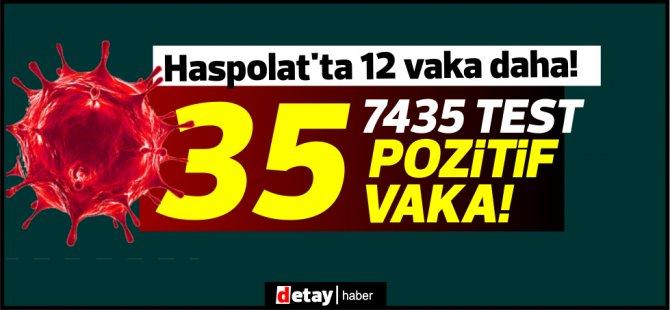 23vaka Lefkoşa'dan! 7435 test,35 pozitif vaka