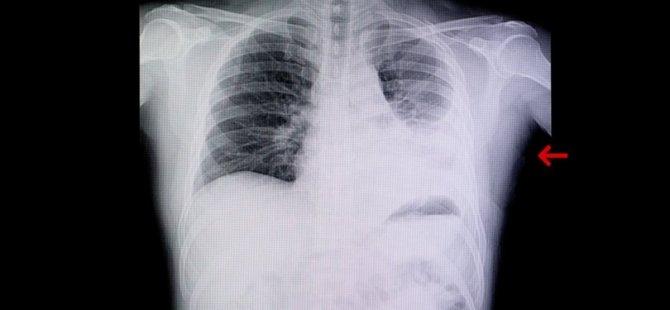 Türkiye Bilim Kurulu Üyesi: Aşılanmamış grup çok büyük akciğer enfeksiyonuyla karşımıza geliyor