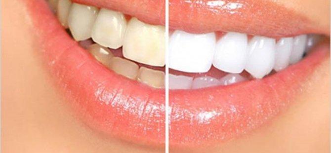 Diş Sararması Sebeplerine Dikkat Edilmeli!