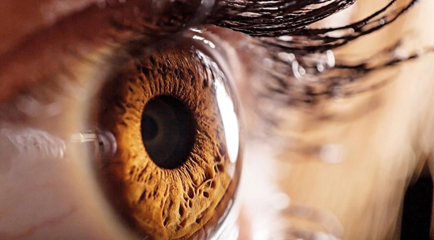 Göz kuruluğunun belirtileri nelerdir?