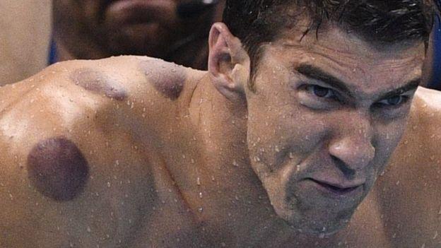 Olimpik sporcuların üzerindeki esrarengiz lekeler ne?