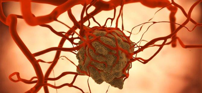 Ameliyatsız, 3 günde karaciğer tümörüne son!