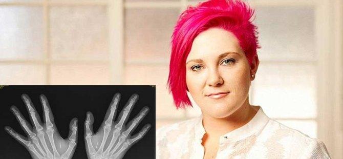 Genç kadının eline mikroçip yerleştirildi!