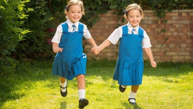 Yapışık doğan ikizler okula başlıyor