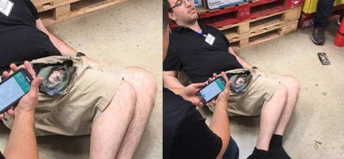 Galaxy Note 7 bacağını yaktı!