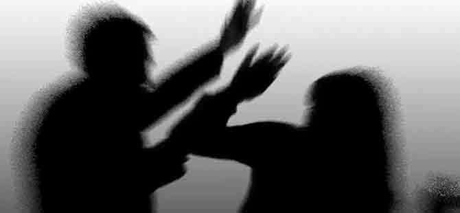 KKTC'de bir kadının çenesini kırmak: 3 bin TL!