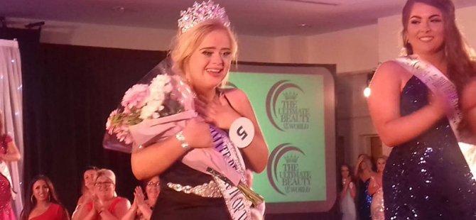 Down sendromlu model, uluslararası güzellik yarışmasını kazandı
