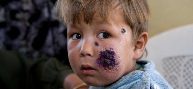 Sivrisineklerin bulaştırdığı en tehlikeli hastalıklar