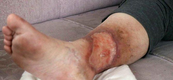 Sivilceyi önemsemedi, bacakları kesilecek duruma geldi.