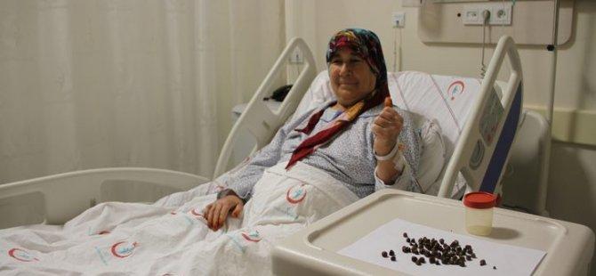 Karın ağrısıyla gitti, Safrasından 86 tane taş çıkardılar
