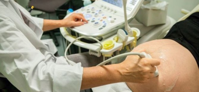 Fransa'da jinekolog sendikasından kürtaj grevi tehdidi