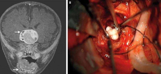Doktorlar, Bir Bebeğin Beyninde Tamamen Gelişmiş Bir Diş Buldular