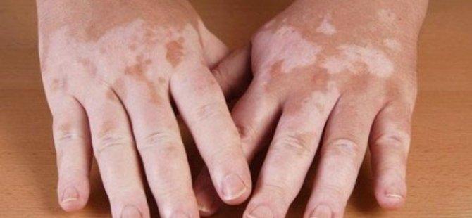 Sedef Vitiligo Ekzema ve Birçok Deri Hastalığı Puva Yöntemi İle Tedavi Ediliyor