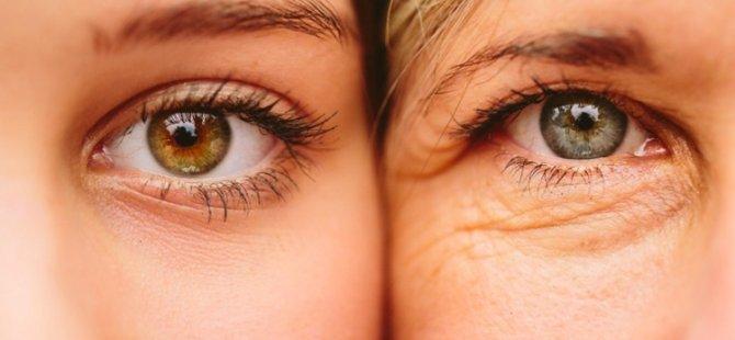 Açık tenli ve renkli gözlüyseniz dikkat
