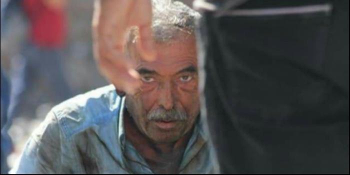 """Ankara'da """"İşsizim, açım"""" diyen bir kişi kendini yaktı"""