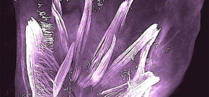 Rahimdeki bebeklerin ellerinde kertenkelemsi kaslar oluştuğu bulundu