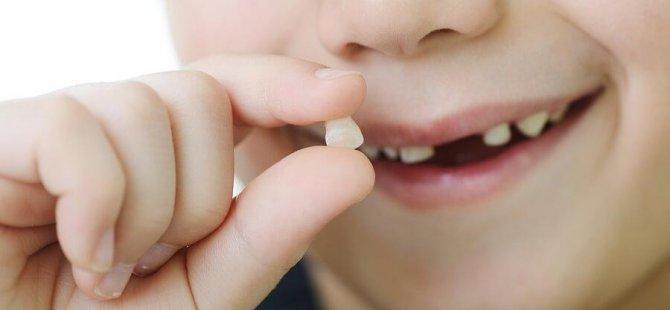 Zamanından önce çekilen süt dişleri çocuklarda konuşma ve beslenme gibi problemlere neden oluyor